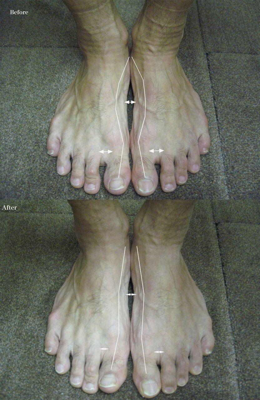 想像してた男性の足よりかなり仕事がしやすい足でしたが、いつもの小さな足で... 林足研究所 足&