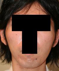 頬骨削り(再構築法)+顎削り(オトガイ骨切り) 術後3ヶ月目_c0193771_1310015.jpg