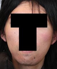 頬骨削り(再構築法)+顎削り(オトガイ骨切り) 術後3ヶ月目_c0193771_13101090.jpg