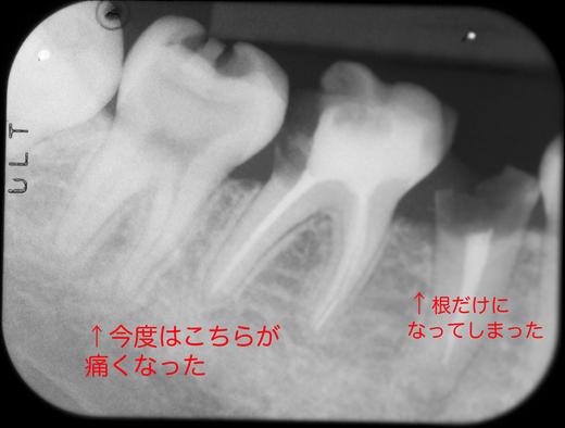 b0112648_004098.jpg