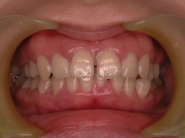 歯周病3つのケース・2  若年性歯周炎_b0119466_2171446.jpg