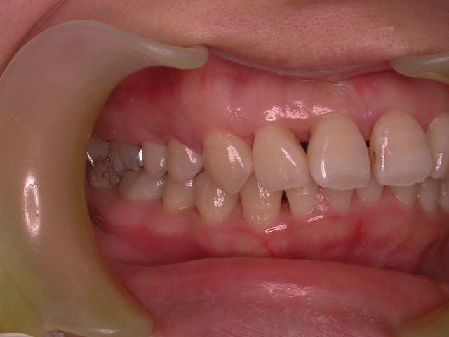 歯周病3つのケース・2  若年性歯周炎_b0119466_2294576.jpg