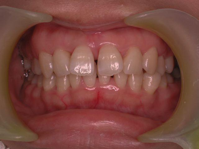 歯周病3つのケース・2  若年性歯周炎_b0119466_23522061.jpg