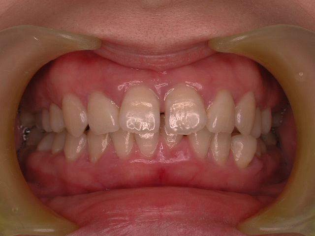 歯周病3つのケース・2  若年性歯周炎_b0119466_09170.jpg
