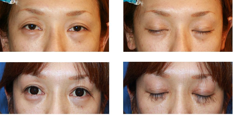 まつげ植毛、 眼瞼下垂修正術、 目尻切開術_d0092965_0273782.jpg
