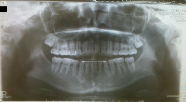 下顎骨スティック骨切り2件 、 脂肪移植豊胸1件 _d0092965_041670.jpg