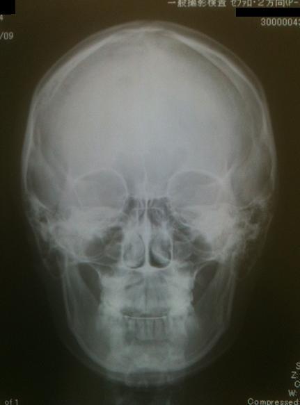 下顎骨スティック骨切り2件 、 脂肪移植豊胸1件 _d0092965_0441249.jpg