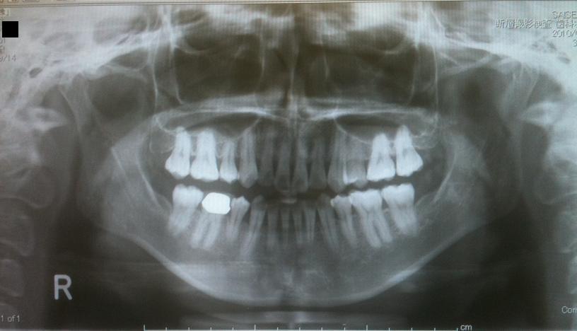 下顎骨スティック骨切り2件 、 脂肪移植豊胸1件 _d0092965_054723.jpg