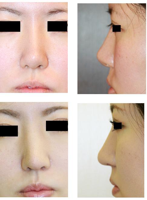 鼻中隔延長術、鼻尖縮小術、鼻プロテーゼ入れ替え術(L→I)_d0092965_040562.jpg