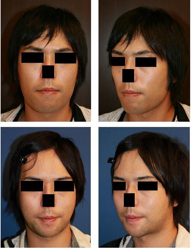 Vライン形成術(下顎骨スティック骨切り術+下顎骨外板外し)、顎先中抜き短縮術頬骨弓前後骨切り術_d0092965_23501478.jpg