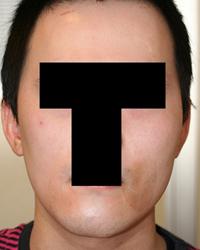 顔面非対称輪郭手術(エラ・頬骨) 術後3ヶ月目_c0193771_14564318.jpg