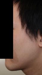 顔面非対称輪郭手術(エラ・頬骨) 術後3ヶ月目_c0193771_14572347.jpg