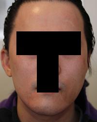 顔面非対称輪郭手術(エラ・頬骨) 術後3ヶ月目_c0193771_14573928.jpg