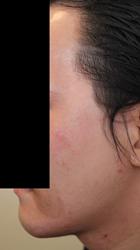 顔面非対称輪郭手術(エラ・頬骨) 術後3ヶ月目_c0193771_14574692.jpg