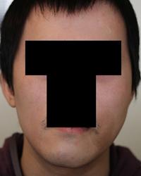 顔面非対称輪郭手術(エラ・頬骨) 術後3ヶ月目_c0193771_1457891.jpg