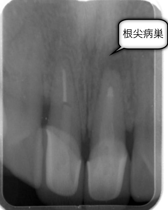 マイクロスコープが可能にしたコア(土台)除去。東京マイクロスコープ顕微鏡歯科治療_e0004468_21465737.jpg