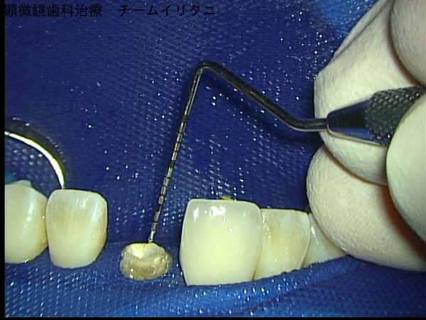 マイクロスコープが可能にしたコア(土台)除去。東京マイクロスコープ顕微鏡歯科治療_e0004468_5281012.jpg
