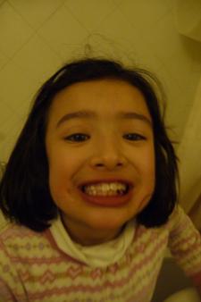 歯が抜けました_f0106597_3314873.jpg