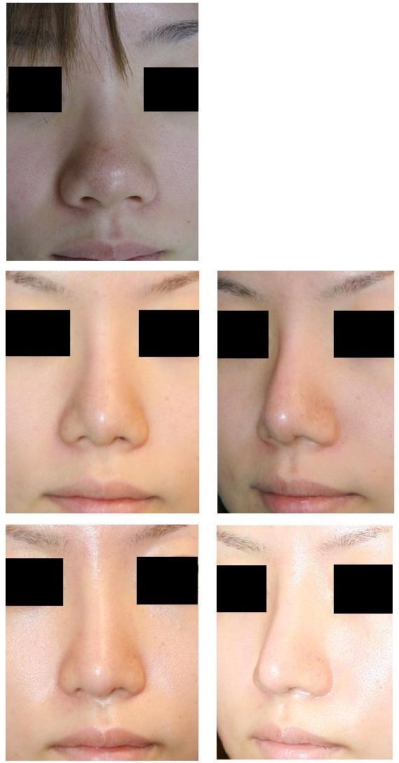 鼻尖縮小術4年後再診    、鼻中隔延長術  、 鼻に関するメール相談(培養軟骨移植)_d0092965_0415467.jpg