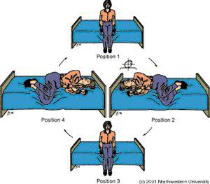 この病気はBenign paroxysmal vertigo(BPPV/...  サキさんのチェ