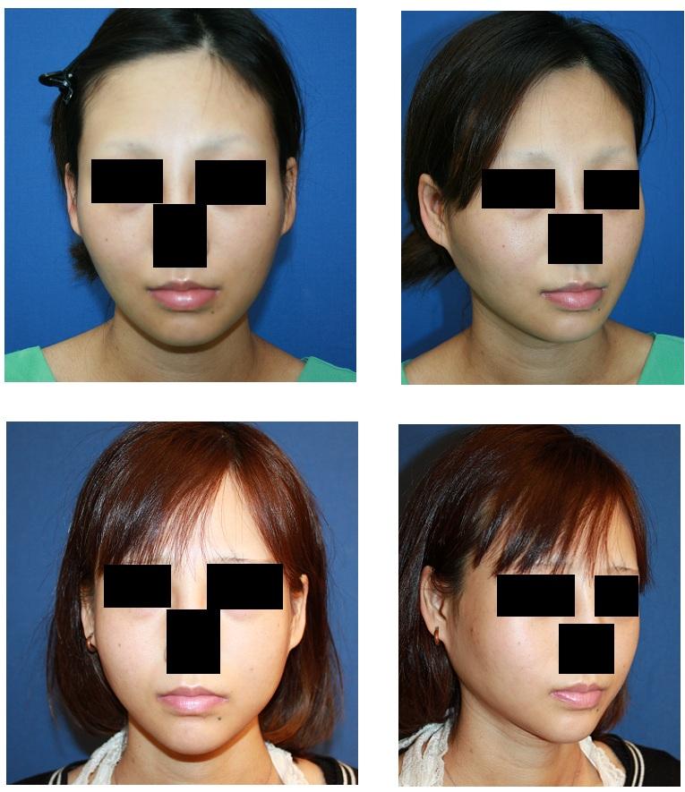 頬骨再構築法 術後半年_d0092965_038329.jpg