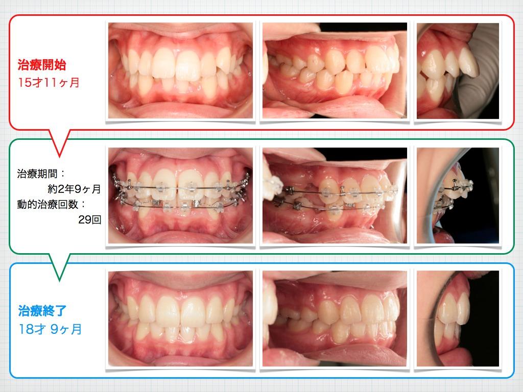 治療例:M・I さん 高度な上顎前突と 口唇の前突の治療例_e0025661_20274369.jpg