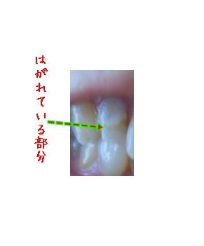 b0078675_9311418.jpg