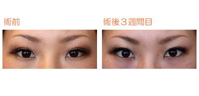 切らない目頭形成(ライフ式目頭埋没整形) 術後1ヶ月目 : Dr勝間田のブログ