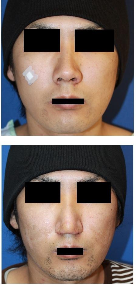 鼻孔縁延長術 (鼻孔縁下降術)    「先生 下げ過ぎです」_d0092965_3103110.jpg