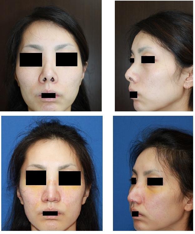 鼻孔縁延長術 (鼻孔縁下降術)、鼻尖部軟骨移植術_d0092965_236344.jpg