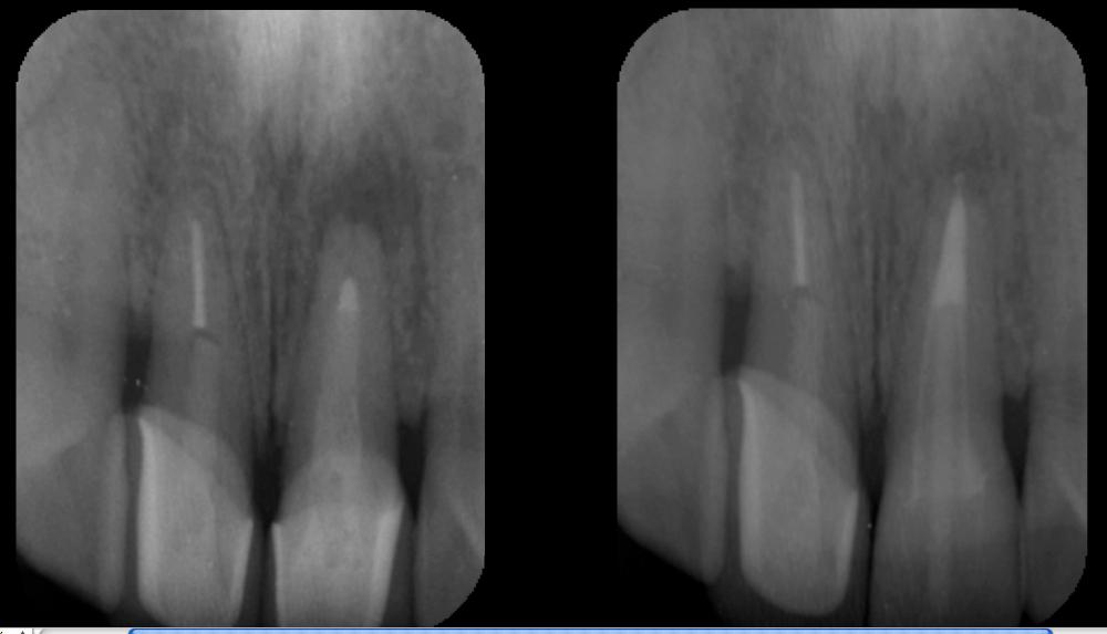 マイクロスコープが可能にしたコア(土台)除去。東京マイクロスコープ顕微鏡歯科治療_e0004468_794743.jpg