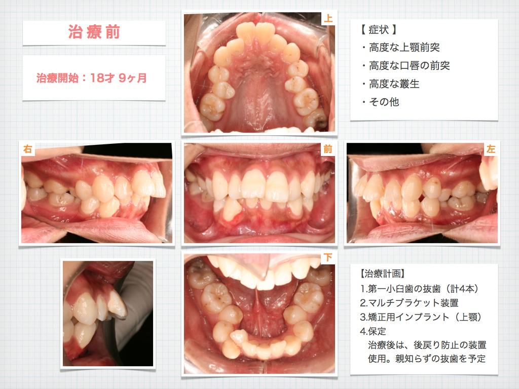 治療例:M・Hさん 高度なデコボコと高度な出っ歯と唇の突出の治療例_e0025661_16534611.jpg