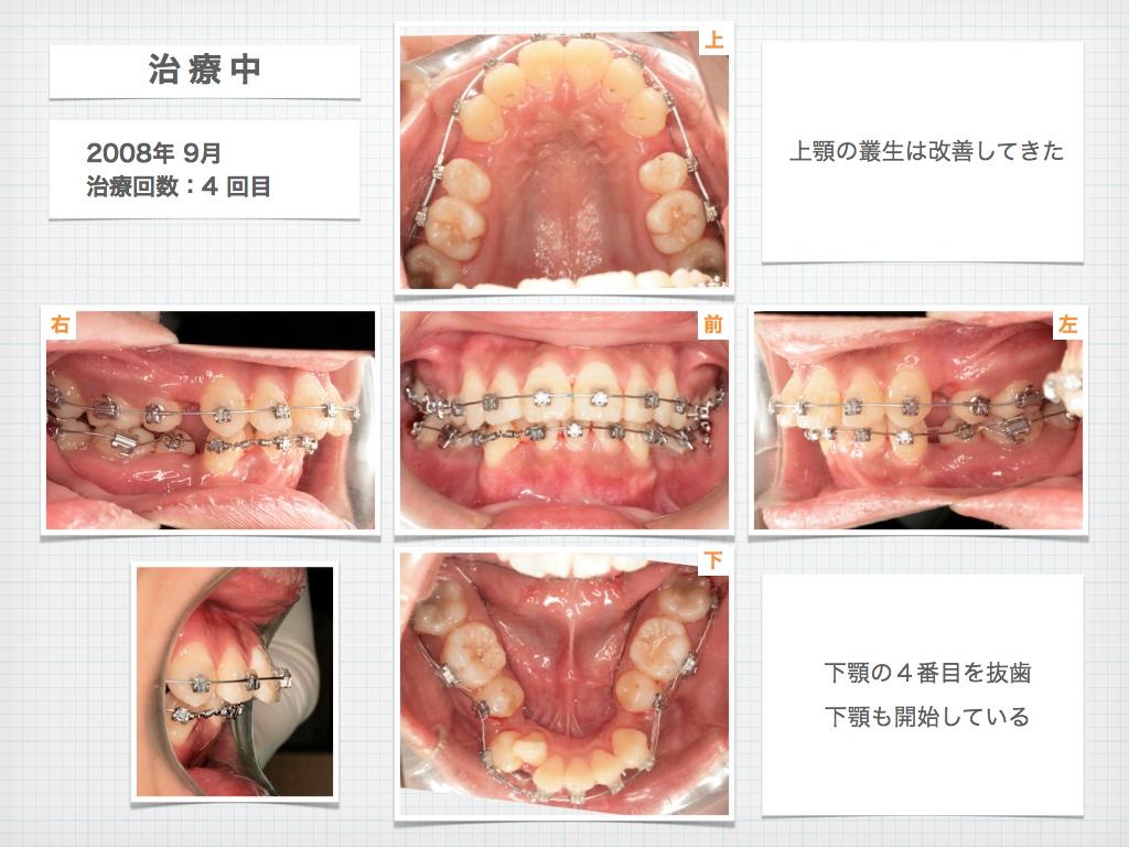 治療例:M・Hさん 高度なデコボコと高度な出っ歯と唇の突出の治療例_e0025661_16542285.jpg