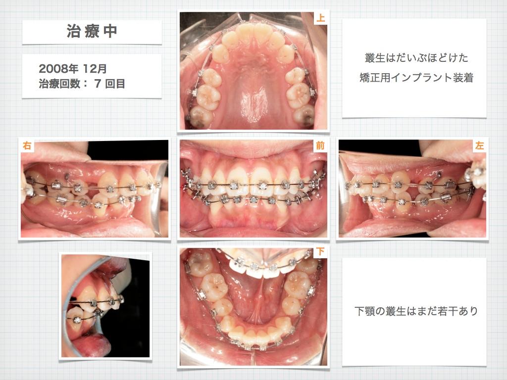 治療例:M・Hさん 高度なデコボコと高度な出っ歯と唇の突出の治療例_e0025661_16544139.jpg