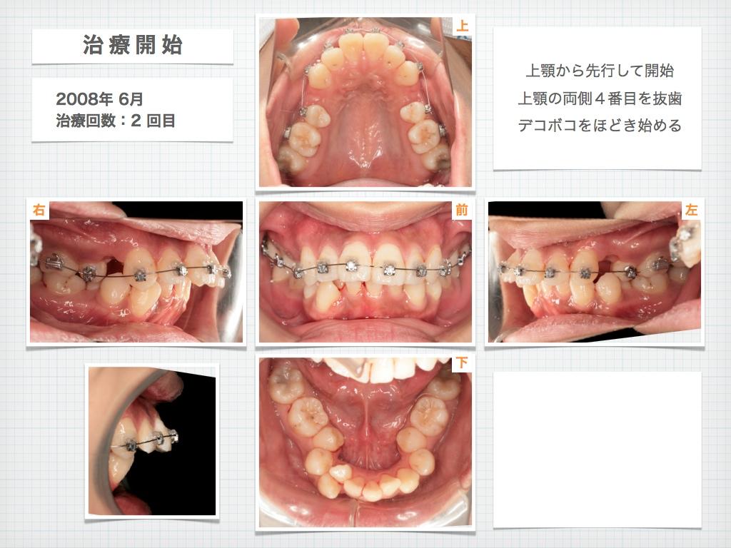 治療例:M・Hさん 高度なデコボコと高度な出っ歯と唇の突出の治療例_e0025661_1654647.jpg