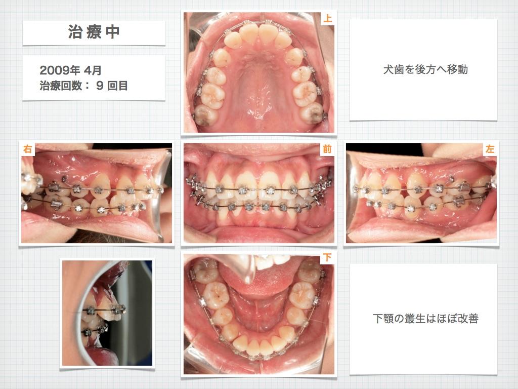 治療例:M・Hさん 高度なデコボコと高度な出っ歯と唇の突出の治療例_e0025661_1655643.jpg