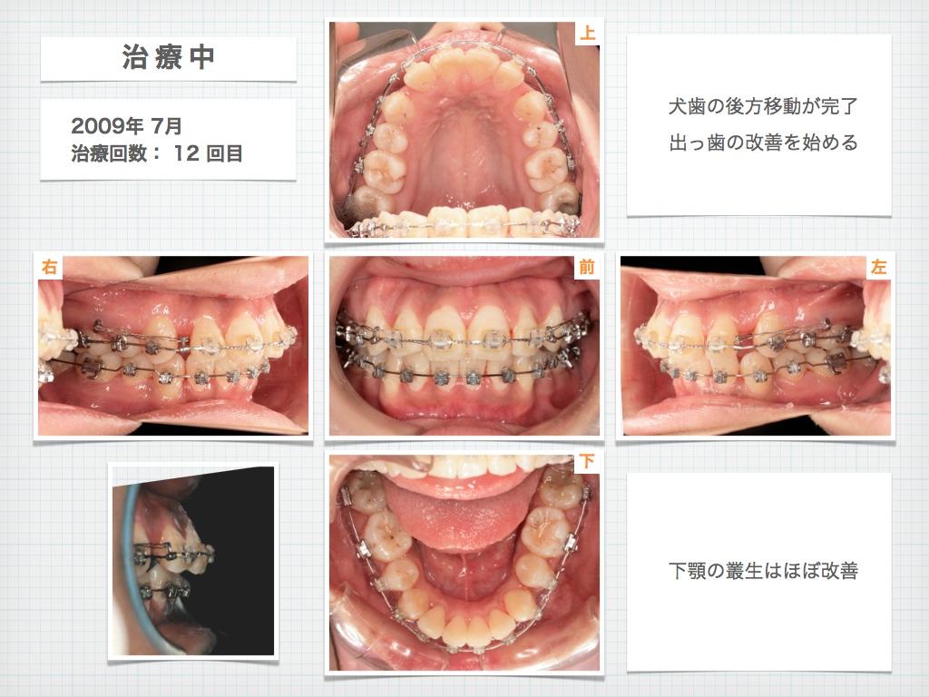 治療例:M・Hさん 高度なデコボコと高度な出っ歯と唇の突出の治療例_e0025661_1732247.jpg