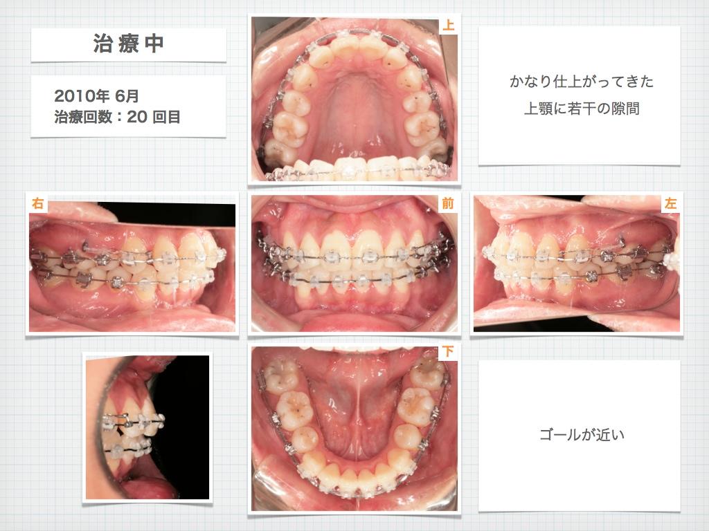 治療例:M・Hさん 高度なデコボコと高度な出っ歯と唇の突出の治療例_e0025661_1733816.jpg