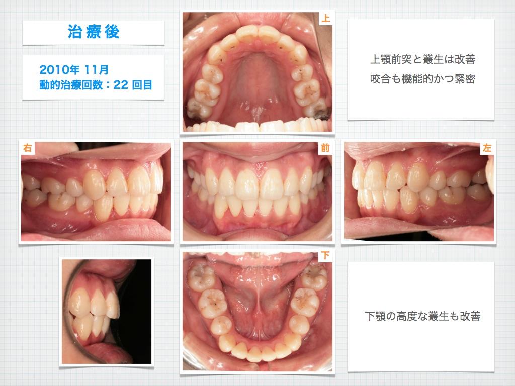 治療例:M・Hさん 高度なデコボコと高度な出っ歯と唇の突出の治療例_e0025661_1735668.jpg