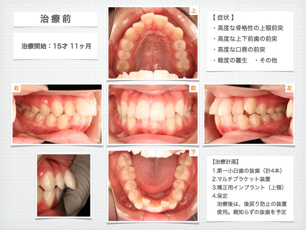治療例:M・I さん 高度な上顎前突と 口唇の前突の治療例_e0025661_4381185.jpg