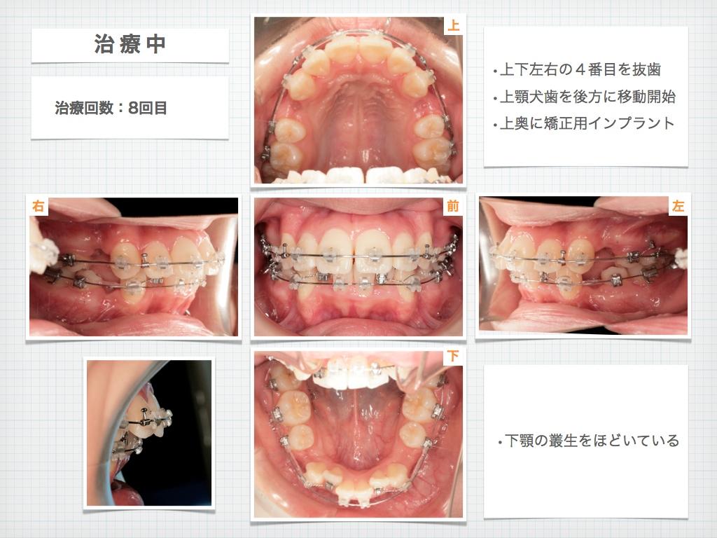 治療例:M・I さん 高度な上顎前突と 口唇の前突の治療例_e0025661_4384433.jpg