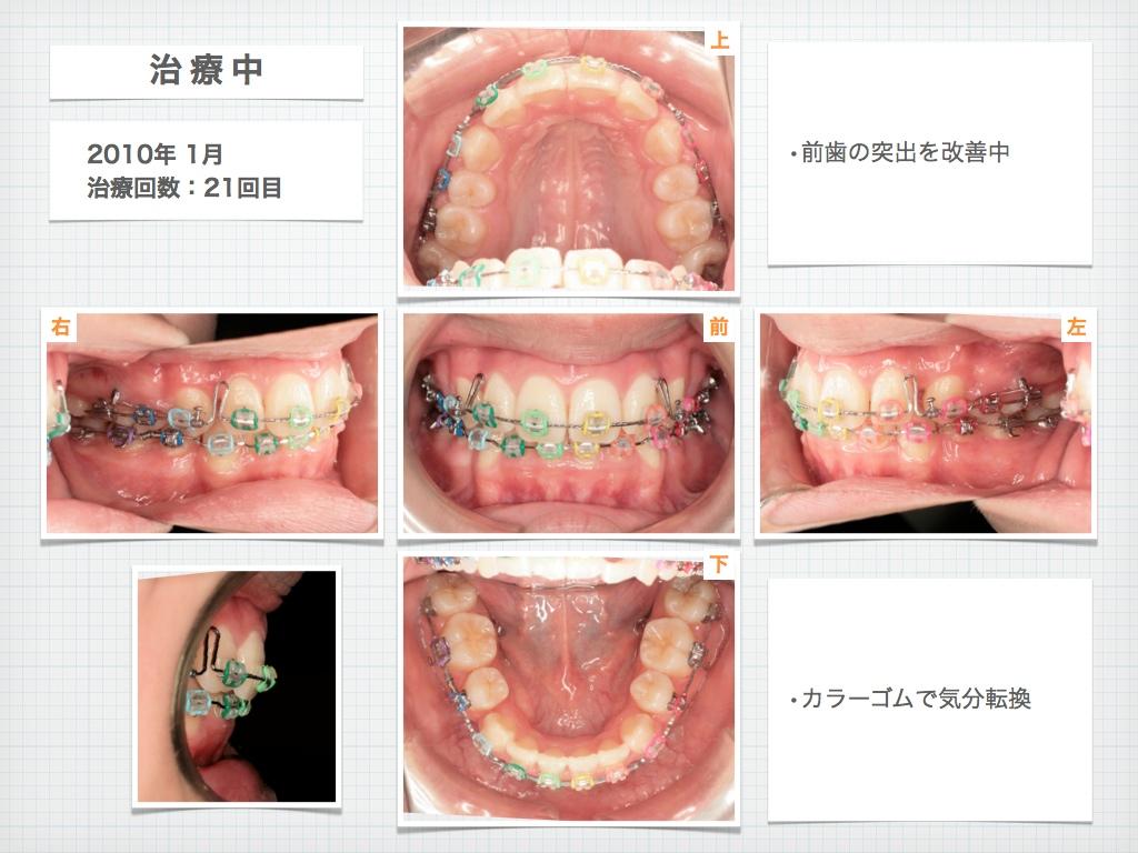 治療例:M・I さん 高度な上顎前突と 口唇の前突の治療例_e0025661_4403182.jpg