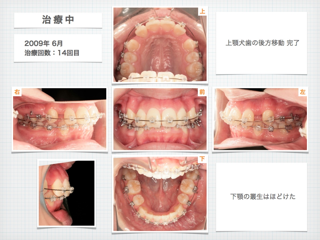 治療例:M・I さん 高度な上顎前突と 口唇の前突の治療例_e0025661_440634.jpg