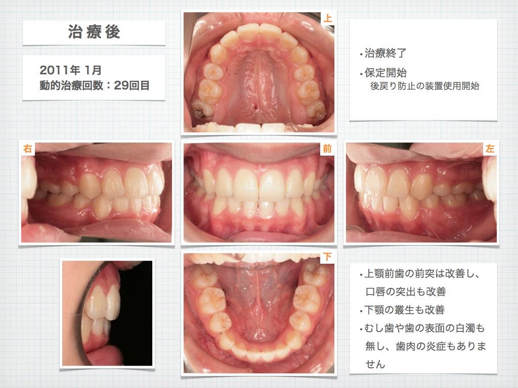 治療例:M・I さん 高度な上顎前突と 口唇の前突の治療例_e0025661_4412849.jpg