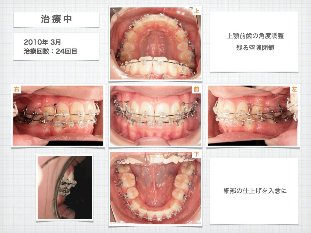 治療例:M・I さん 高度な上顎前突と 口唇の前突の治療例_e0025661_441856.jpg