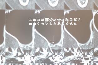 b0190560_1837587.jpg