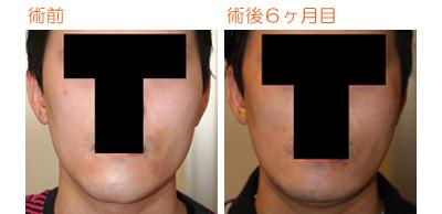 顔面非対称輪郭手術(エラ・頬骨・顎) 術後6ヶ月目_c0193771_10521518.jpg