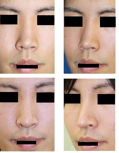 鼻プロテーゼ、眉間プロテーゼ(ゴアテックス)、鼻中隔延長術_d0092965_15284644.jpg