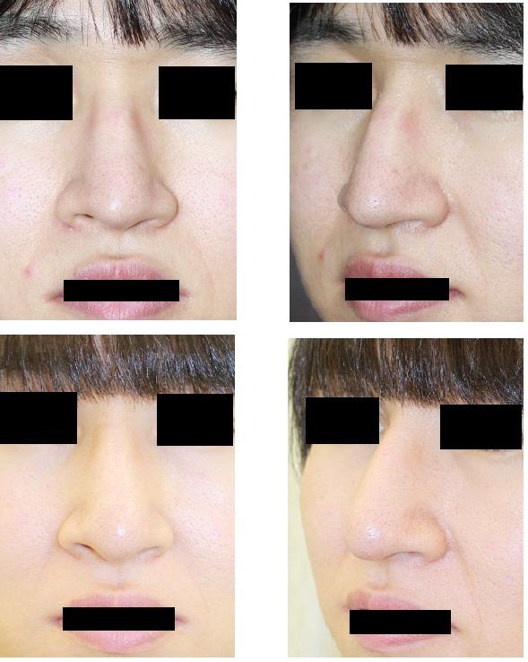 他院術後修正: 鼻尖縮小術、鼻尖部肉厚減幅術_d0092965_1381746.jpg