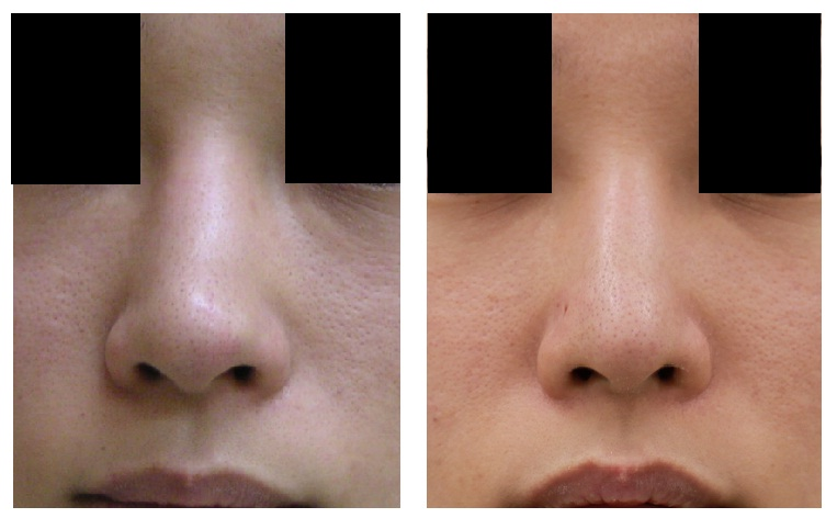 鼻尖縮小術後 5年半_d0092965_1341299.jpg